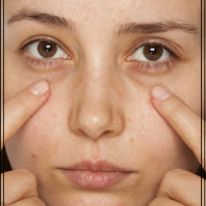 How to Fix Dark Circles Under Eyes Naturally 1